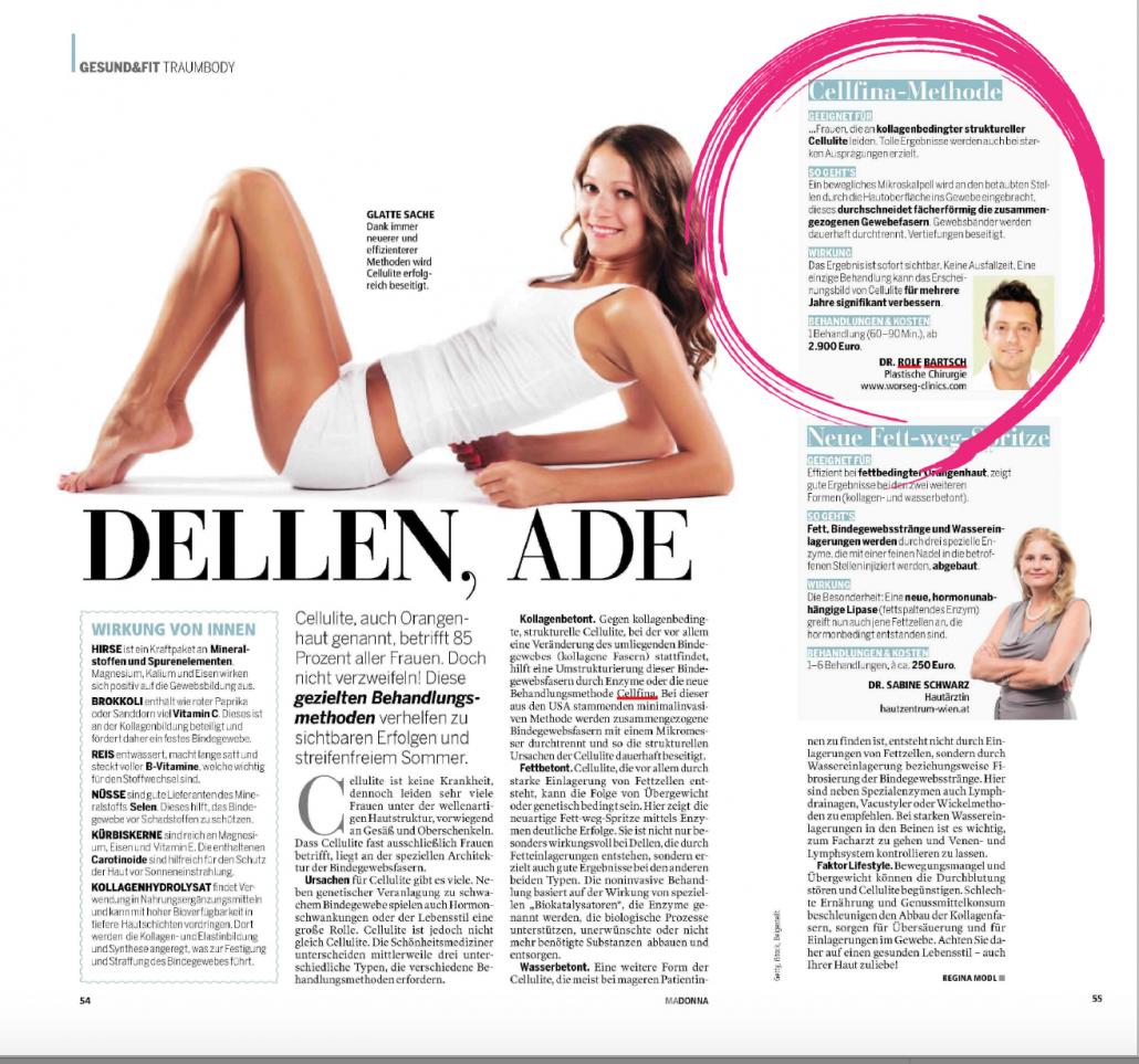 Dellen Ade, Cellfina Cellulite-Behandlung Wien