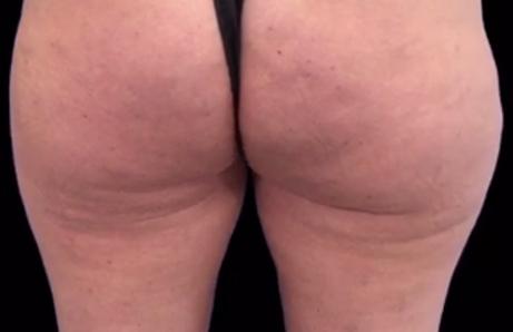 Anti-Cellulite Ergebnis Behandlung Wien