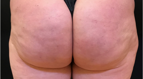 Cellfina Nachher Cellulite Lösung