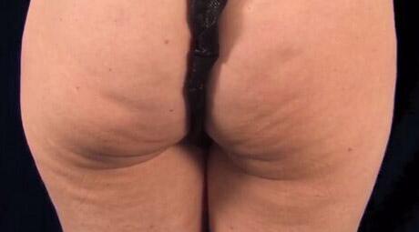 Ergebnis einer Cellulite-Behandlung Wien